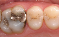 CEREC - before image