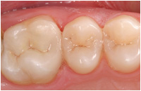 CEREC - after image